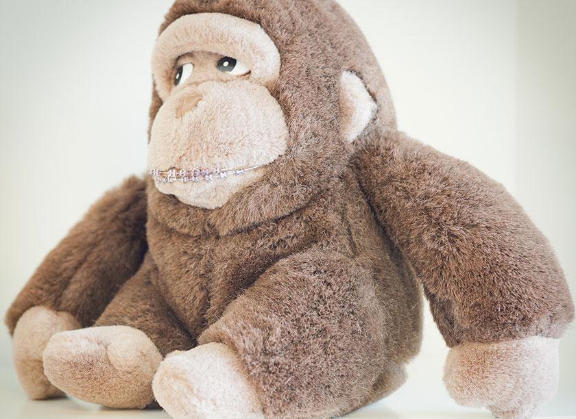 Kieferorthopaedie Aguero - Impressionen Gorilla Zahnspange