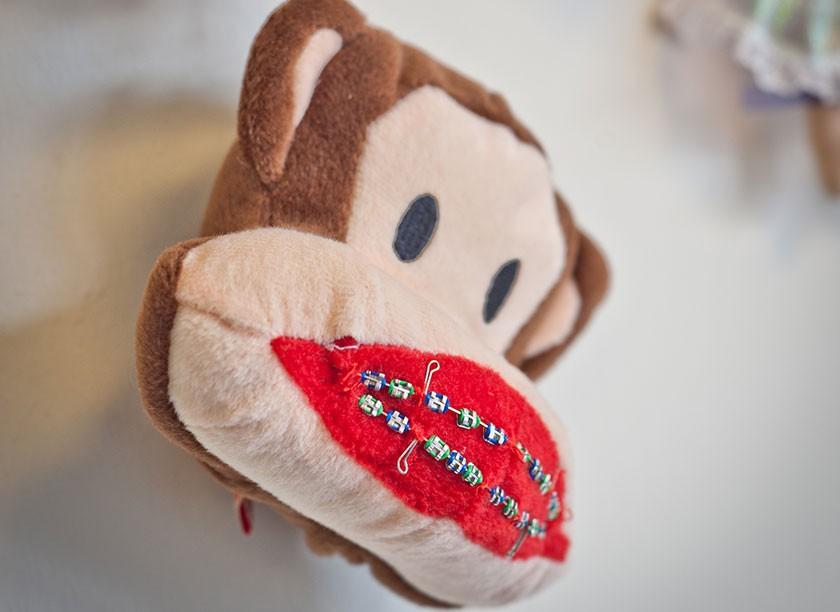 Kieferorthopaedie Aguero - Impressionen Pluesch-Affe festsitzende Zahnspange