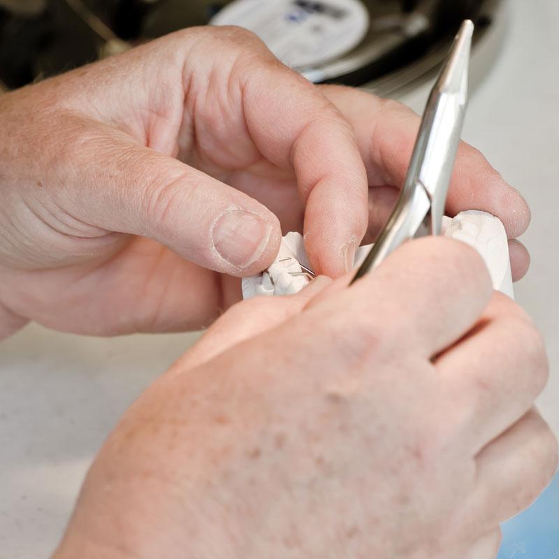 Kieferorthopaedie Aguero Zahnspange Feinjustierung